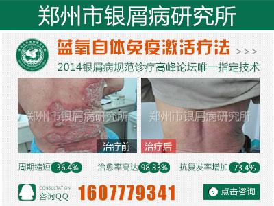 郑州牛皮癣最好的医院