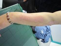 手臂牛皮癣症状