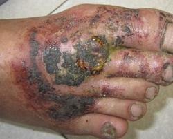 双脚牛皮癣的发病原因