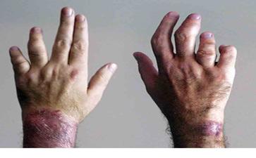 关节病型牛皮癣怎样预防