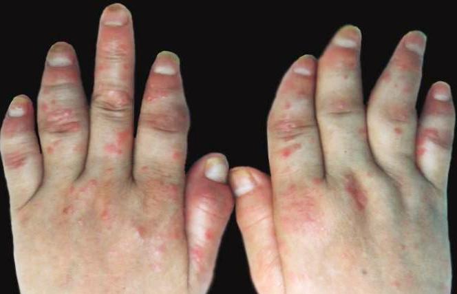 关节型牛皮癣常见的症状