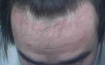 男性银屑病患者如何降低发病率