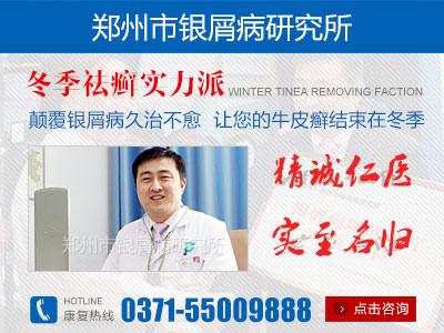 河南牛皮癣治疗最好的医院