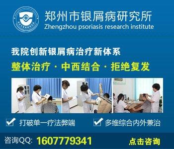 濮阳牛皮癣治疗医院